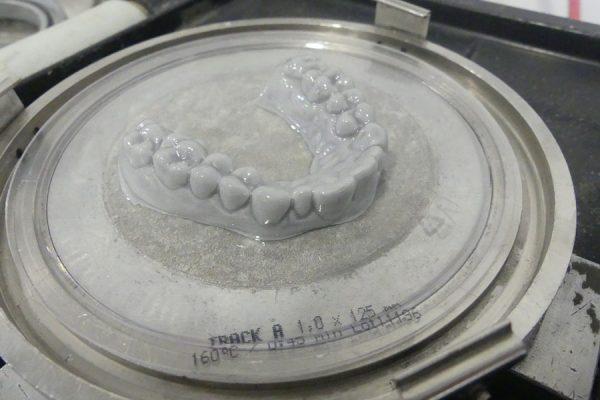 Dentifix resin for dental models